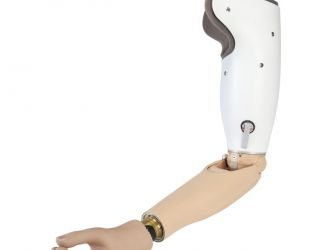 Proteza ramienia