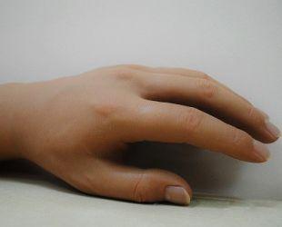 Proteza dłoni